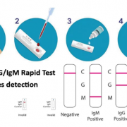 test sierologico rapido